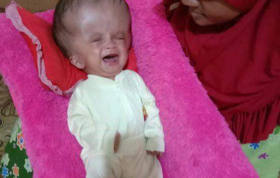 Abdul Karim, Bayi 6 Bulan asal Morotai yang Berjuang Melawan Hidrosefalus